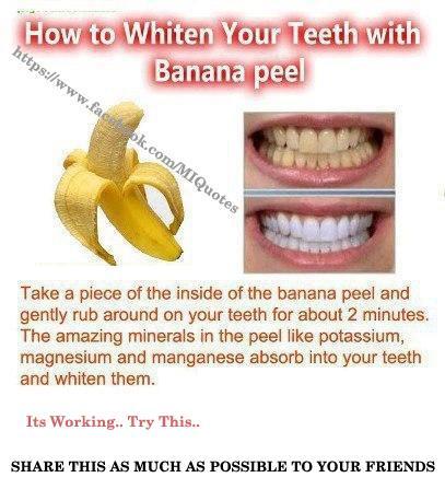 White Diet After Teeth Whitening Food List